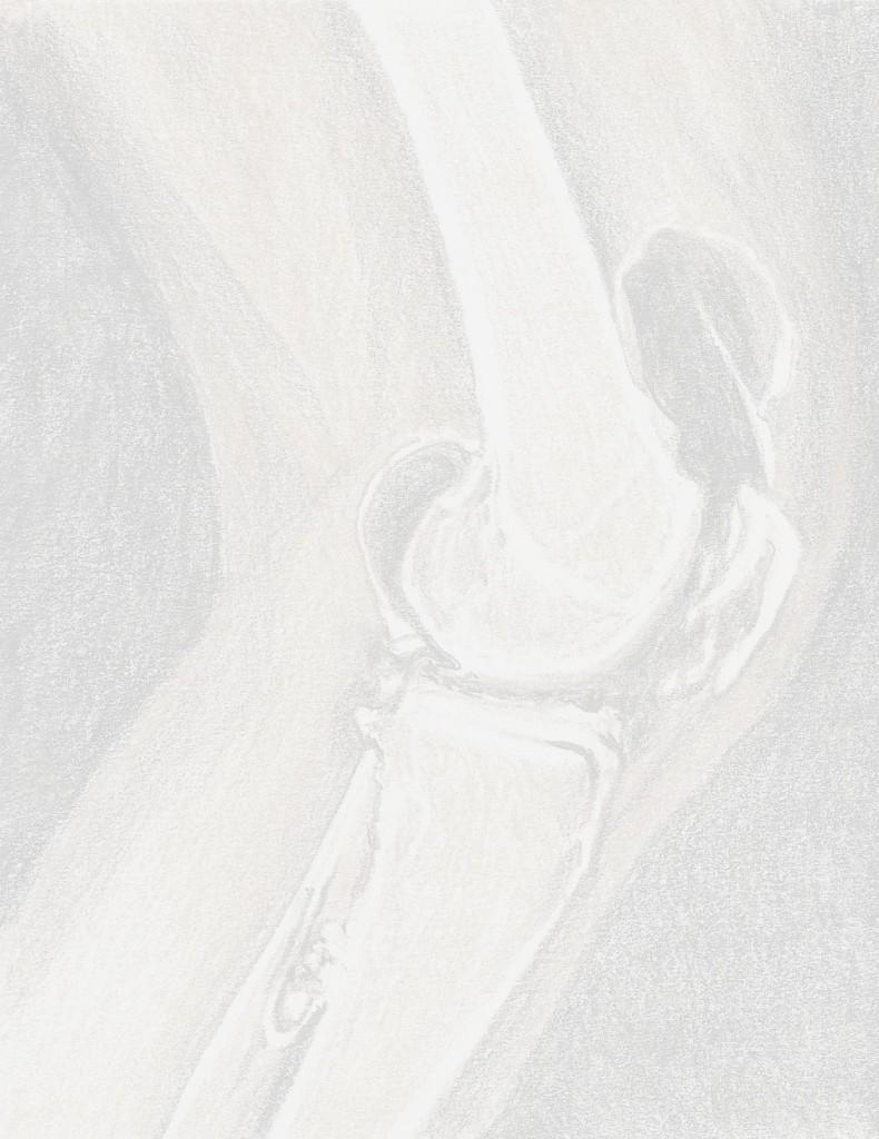 lesione del legamento crociato anteriore dott fabrizio